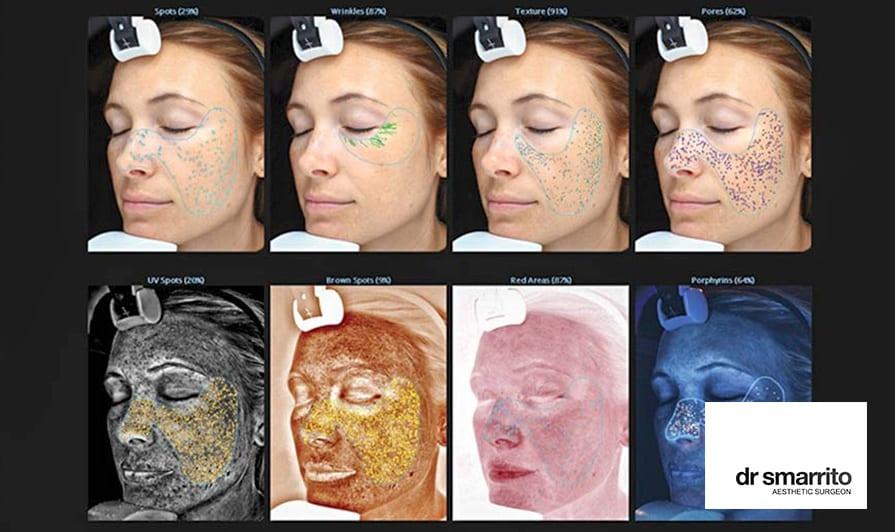 Une approche scientifique du diagnostic au niveau du visage en médecine esthétique