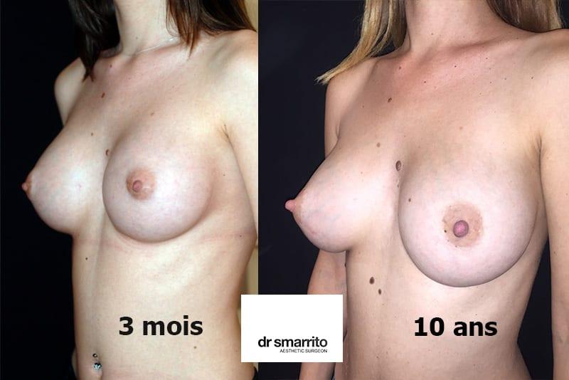 Résultat après augmentation mammaire à 10 ans