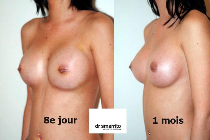 aspect augmentation mammaire à 8 jours et 1 mois