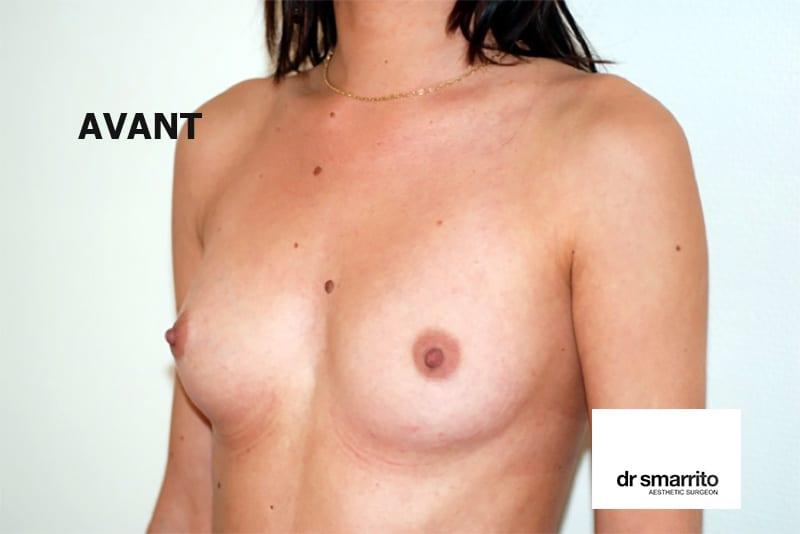 Avant augmentation mammaire par le docteur SMARRITO