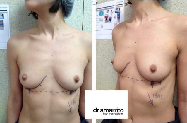 Aspect pré-opératoire augmentation mammaire