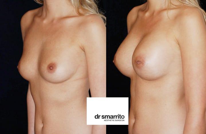 superbe augmentation mammaire Dr SMARRITO