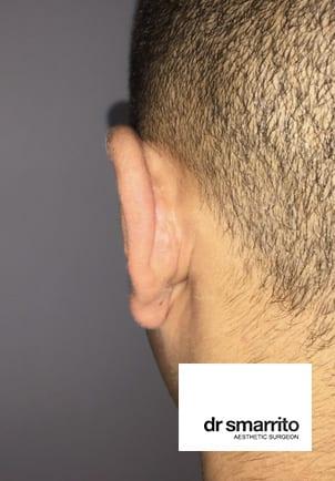 Une cicatrice typique d'otoplastie derrière l'oreille.
