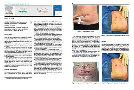 article cryoliposuccion