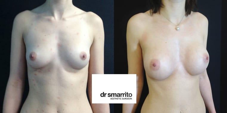 avant-apres prothese des seins