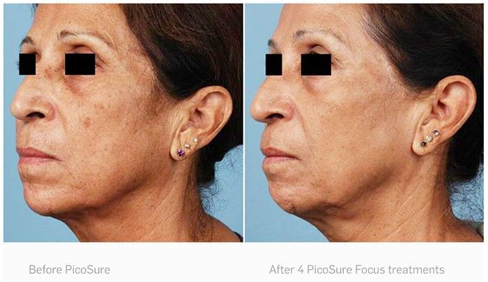 enlever les taches brunes du visage