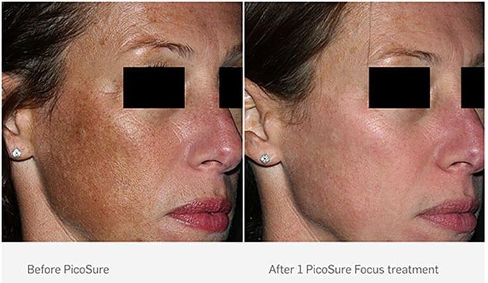 enlever les taches pigmentaires du visage